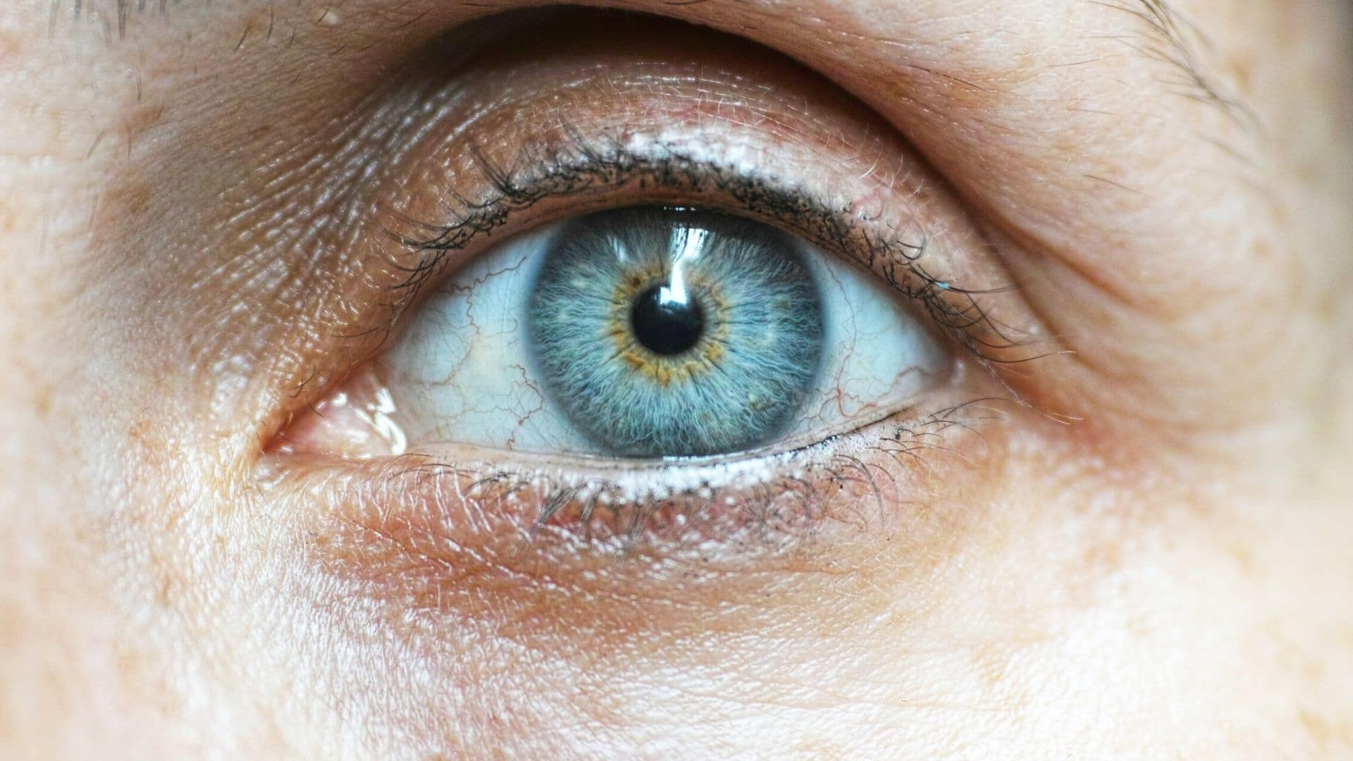 Glaucoma-PGOA, vision-loss