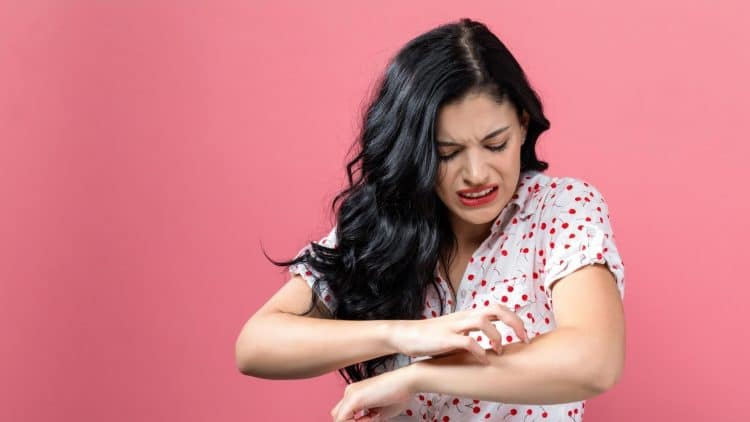 woman itching her arm during the summer