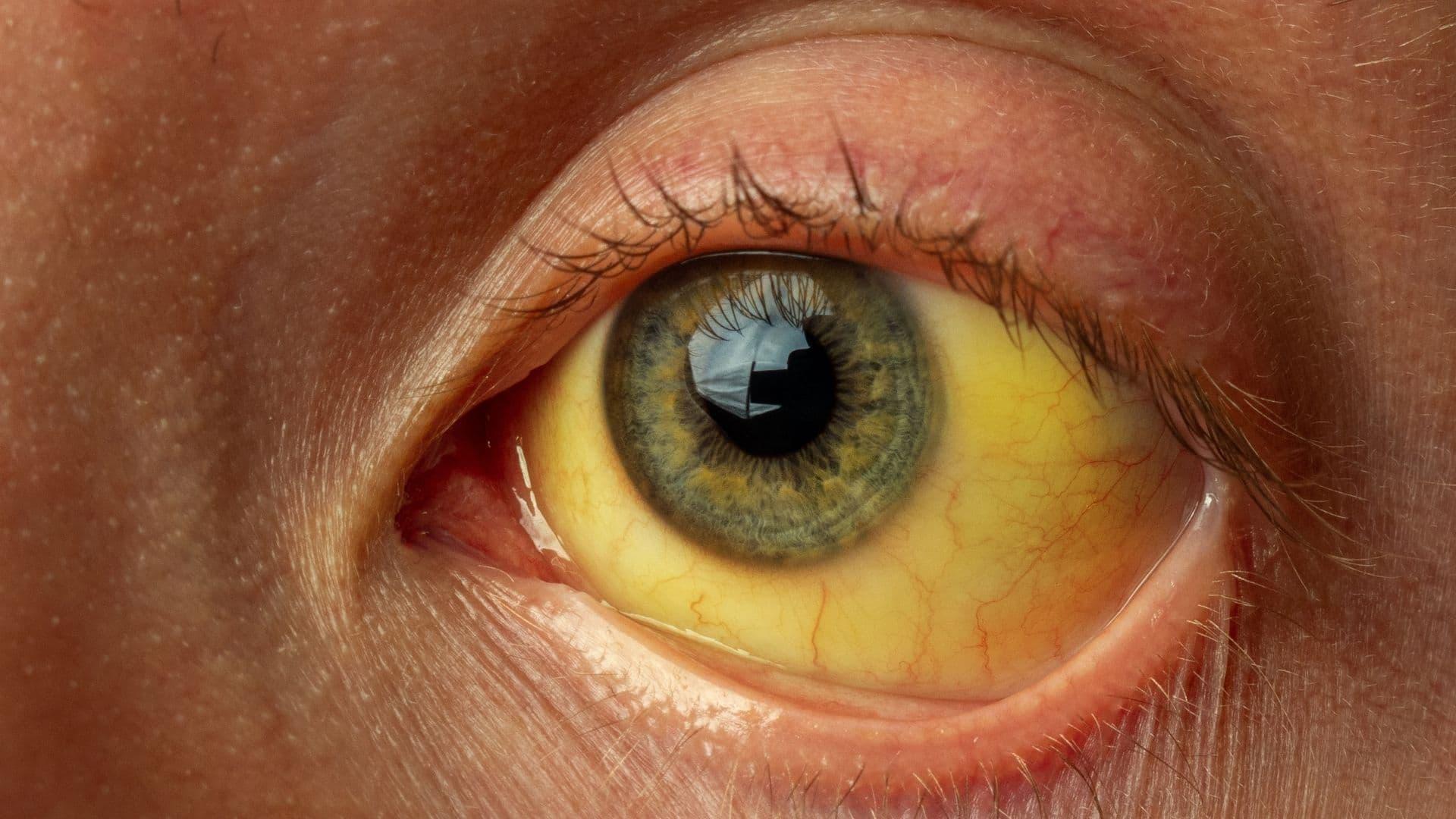 yellow jaundice eye from hepatitis